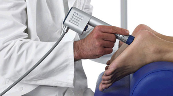 Topuk dikeni tedavisi yöntemleri: topuk dikeni, radyografi, lazer tedavisi şok dalga tedavisi